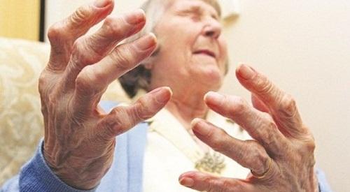 Bệnh viêm khớp gây khó chịu ở nhiều người