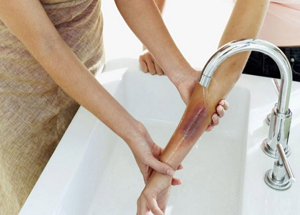 Vùng da bị bỏng rất dễ để lại sẹo co kéo và sẹo thâm nếu chăm sóc không đúng cách