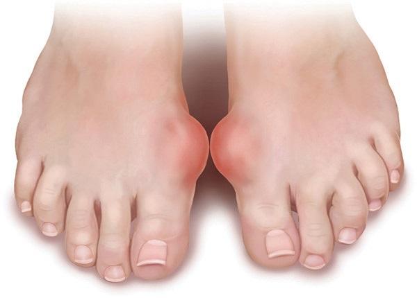 Bệnh gout khiến cuộc sống của bạn trở nên khó khăn