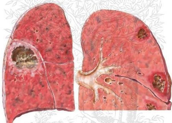 Bệnh xơ phổi là tình trạng tổn thương mạn tính mô ở sâu bên trong phổi làm cho mô phổi bị dày lên