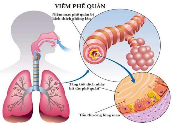 Viêm phế quản là tình trạng các ống dẫn khí ở hệ hô hấp dưới bị viêm lớp niêm mạc